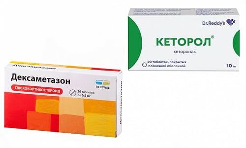 Кеторол и Дексаметазон - лекарства, при совместном применении оказывающие противовоспалительное и анальгезирующее действие