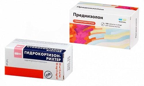 Гидрокортизон или Преднизолон назначаются для лечения аллергии